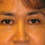 Blepharoplasty The Woodlands Patient 6