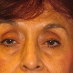 Patient 2 Before Blepharoplasty