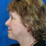 Facial Surgery The Woodlands Patient 3
