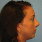 Rhinoplasty The Woodlands Patient 6