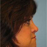 Patient 7 Before Rhinoplasty Right Side View