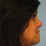 Rhinoplasty The Woodlands Patient 7