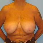 Patient 15 Before Breast Reduction Front View