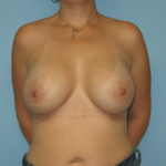 Patient 21 After Breast Augmentation Front View