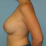 Patient 21 After Breast Augmentation Left View