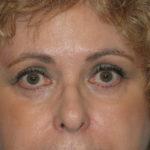 Patient 12 After Blepharoplasty