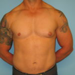 Patient 7 Before Gynecomastia Front View