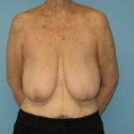 Patient 21 Before Breast Reduction Front View
