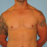 Patient 7 After Gynecomastia Front View