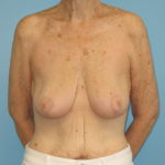 Patient 21 After Breast Reduction Front View
