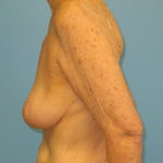 Patient 21 After Breast Reduction Left View