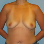 Patient 21 Before Breast Augmentation Front View