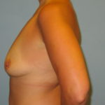 Patient 21 Before Breast Augmentation Left View