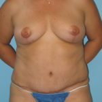 Patient 8 After Abdominoplasty Front View