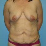 Patient 8 Before Abdominoplasty Front View