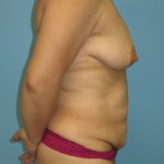 Patient 8 Before Abdominoplasty Right Side View