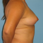 Patient 22 After Breast Reduction Right View
