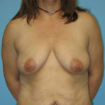 Patient 22 Before Breast Reduction Front View