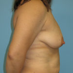 Patient 22 Before Breast Reduction Right View