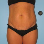 Patient 9 Before Abdominoplasty Front View1
