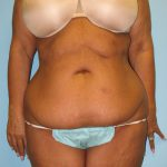 Patient 2 Before Tummy Tuck Front View