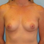 Patient A Before Breast Augmentation Front View