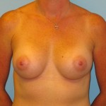 Patient A After Breast Augmentation Front View