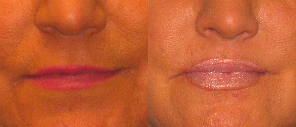 Before and After Comparison of Lip Enhancement